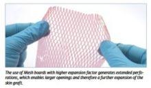 Meshboard - nosná fólie pro kožní štěpy - pro Skin expansion systém